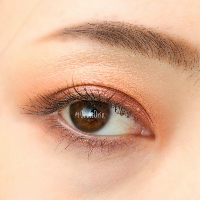 目の稗粒腫